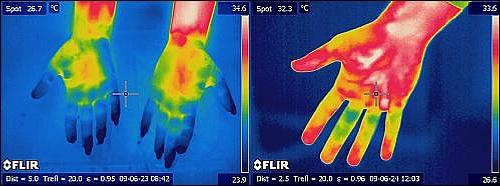 Тепловизор в медицине