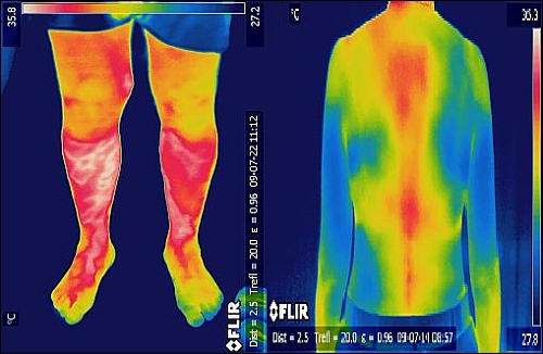 Термограмма человека тепловизор медицинский