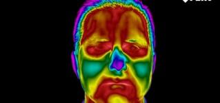 Значение применения тепловизоров в области медицины
