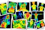 Обследование человека тепловизором